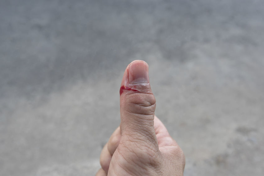 Flesh wound with blood on my finger Body Part Close-up Day Finger Focus On Foreground Hand Holding Human Body Part Human Finger Human Hand Human Limb Leisure Activity Lifestyles Men One Person Outdoors Personal Perspective Real People Showing Unrecognizable Person