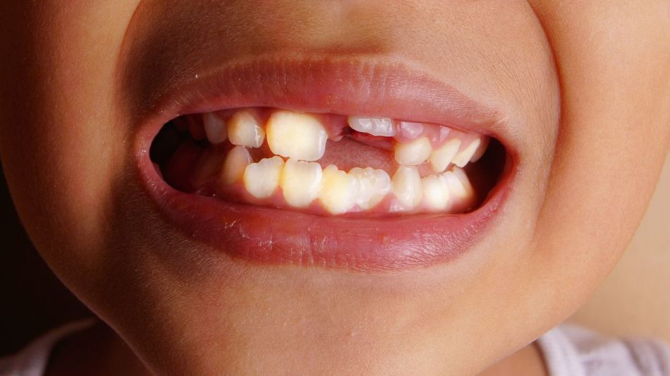 Tooth remove via dental surgery. New growing tooth on gum Dental Hygeine Boayyy Milk Tooth Mouth Boy Grow Gum Healthy Healthy Eating Kid Male Remove Surgery Teeth Tooth Uneven