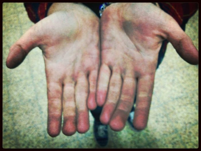 Dirty hand from weldin in manufacturing