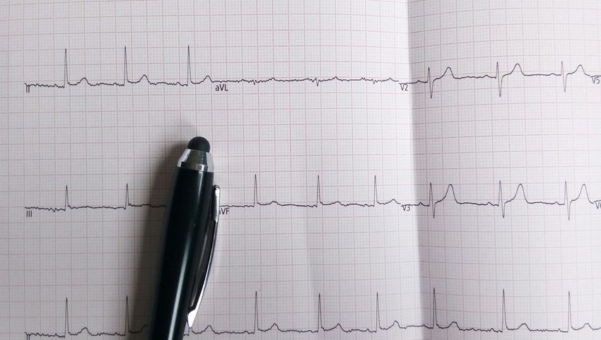 Heart Life Ekg ECG Care Paper EyeEm Selects Paper Indoors  No People Ink Close-up Nib Day Ballpoint Pen Dissolving Assisted Living Ink Well Bedside Manner Tattooing Home Caregiver Infographic Fountain Pen Writing Instrument Scribble Page Quill Pen Pen Lined Paper Calligraphy