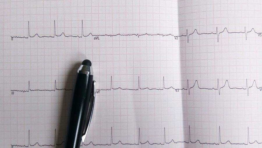 Full Frame Shot Of Line Graph Paper
