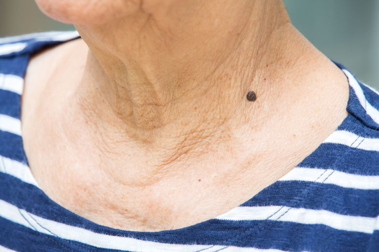 Midsection of woman with mole on neck