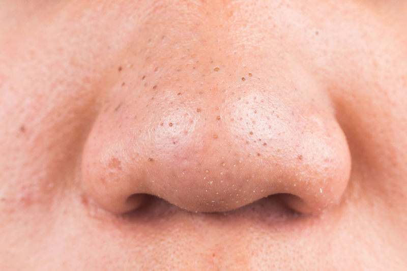 Black Head Close-up Closeup Front View Human Body Part Human Face Human Skin Hygiene Nose Ring Pimples Teenager Ugly Face Young Adult Zit