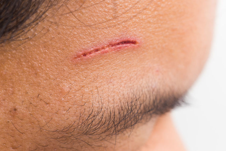 Painful and deep cut with blood on the forehead of a person Asian  Cut Forehead Injured Body Part Close-up Deep Cut Healthcare And Medicine Human Body Part Human Face Human Skin One Person Pain Skin Wound