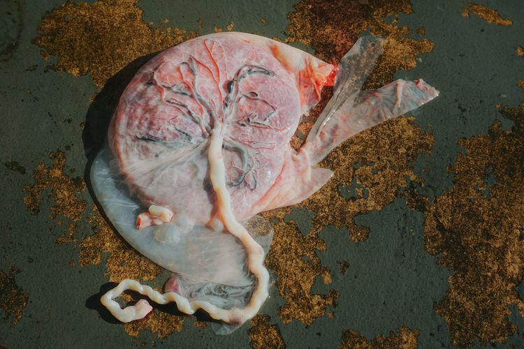Placenta of human