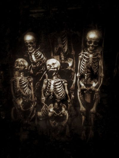 Backgrounds Black Background Creativity Dark Illuminated Still Life Skeleton Skeletons Medical Bones Death Beauty In Death Museum Amsterdam Museum Vrolik Medical Conditions Deformities Blackandwhite Black And White Monochrome Scary Creepy Human Skeleton