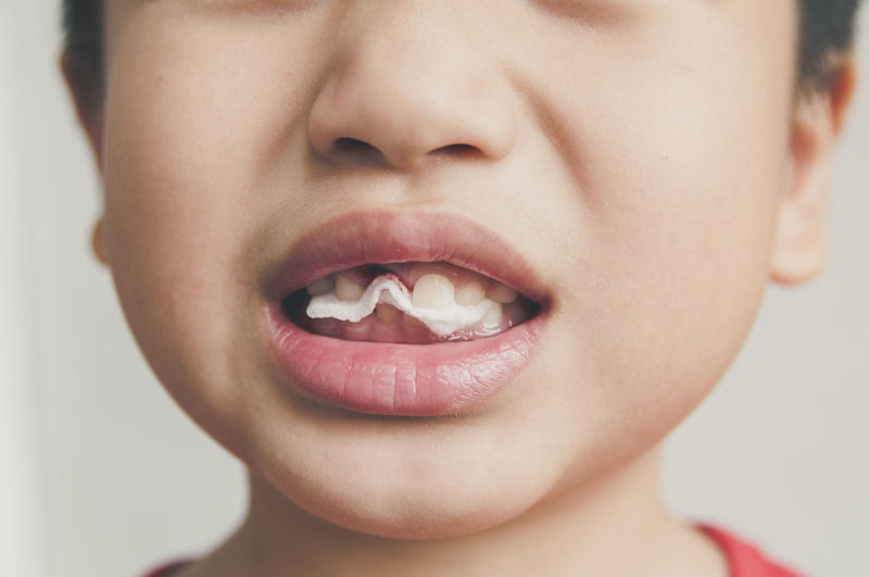 Closeup of young kid biting cotton gauze pad after tooth extraction Bite Boy Childhood Close-up Cotton Dentistry Extraction Face Front View Gauze Human Lips Kid Mouth Pad Tooth Young