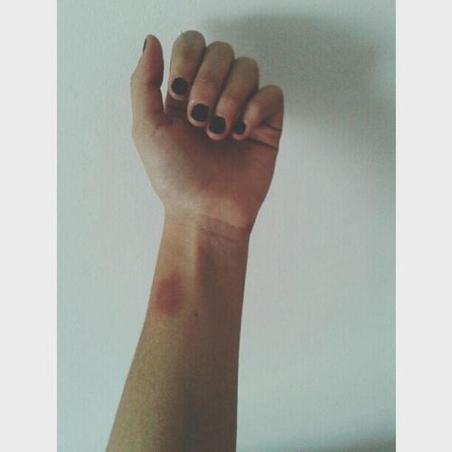 bruises ♥ Hi!