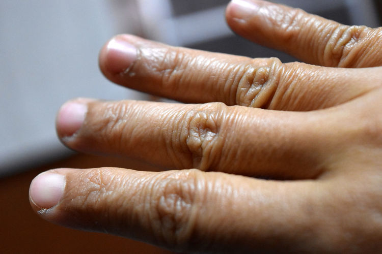 Extreme Close Up Of Human Hand