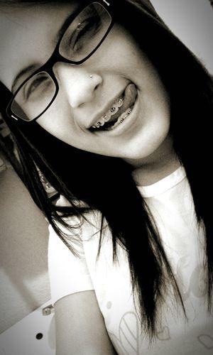 Lentes Blackandwhite Smile Allthetime Optimist Brakets Allineedisgod♡
