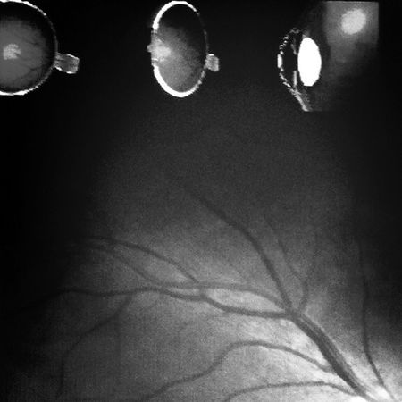 Sci Fi Eye. Black & White At The Doctor EyeEm Best Shots Random