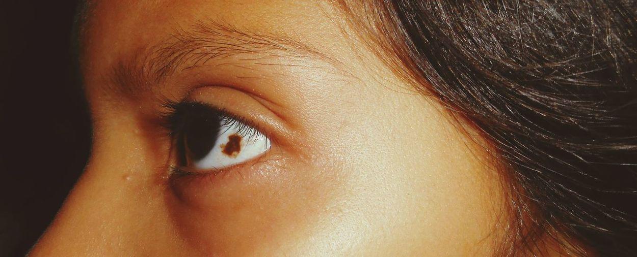 Eye Mole In The Eye