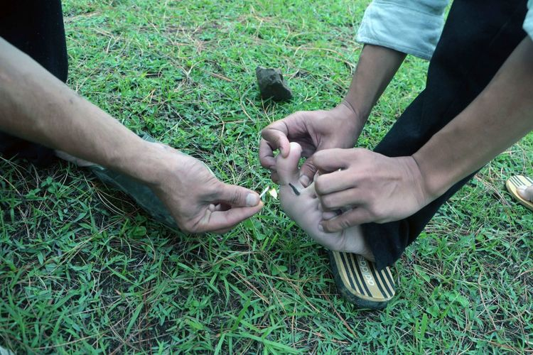 Man removing leech from human leg at grassy field
