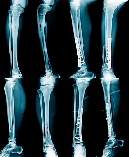 Fixation Leg Anatomy Black Background Blue Sky Body Part Bone  Close-up Healthcare And Medicine Human Body Part Human Bone Human Hand Human Leg Human Limb Indoors  Limb Medical Exam Medical X-ray People Side By Side Studio Shot Wrist X-ray Image