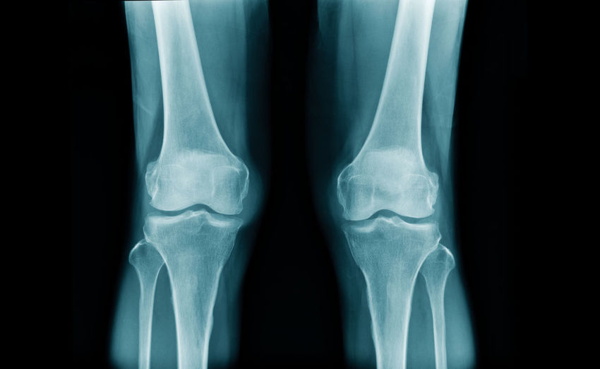 Medical x-ray image of knees and legs