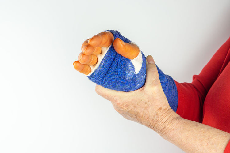 freshly operated hand with blue bandage and disinfectant orange fingers Hand Operated Bandage Operation Operate Carpal Tunnel Syndrome Care Health Medicine Plastered Blue Arm Pain Patient Medical Hurt Accident Hospital Broken Emergency Aid Fracture Woman person Gauze Healthcare Treatment Healing Finger Clinic Human Hand Human Body Part Studio Shot Indoors  White Background Men One Person Limb Body Part Copy Space Human Limb Healthcare And Medicine Close-up Human Arm Physical Injury Medical Supplies Human Foot