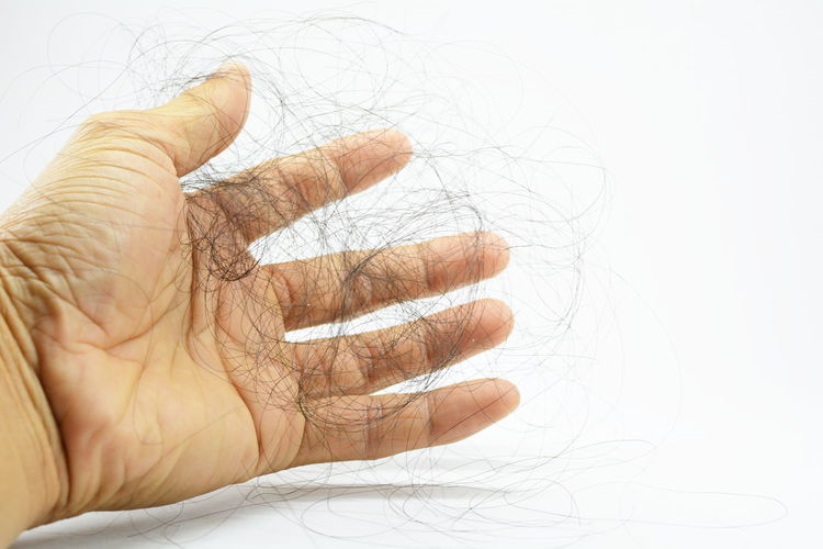 Hair loss, hair fall everyday serious problem, on white background. Adult Body Part Close-up Finger Gesturing Hair Loss Hand Human Body Part Human Finger Human Hand Human Limb Human Skin Indoors  Lifestyles Negative Emotion One Person Pain Palm Skin Unrecognizable Person Wrinkled