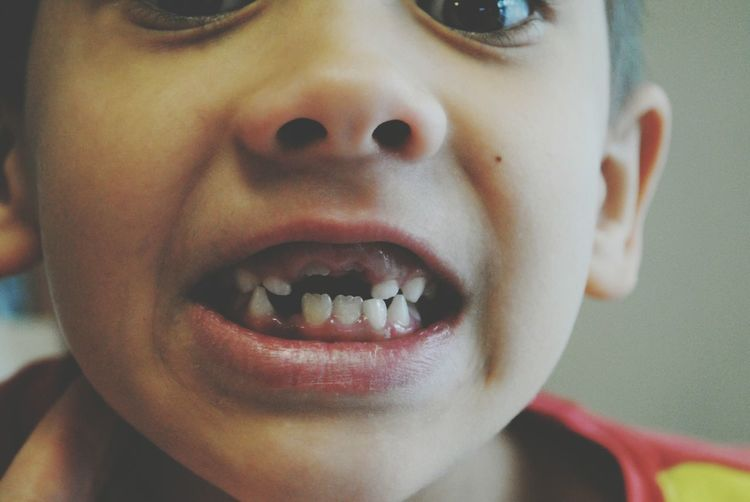 Close-Up Of Boy With Missing Tooth
