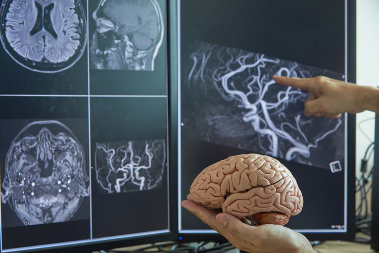 Cropped hand holding brain while analyzing x-ray on device screen