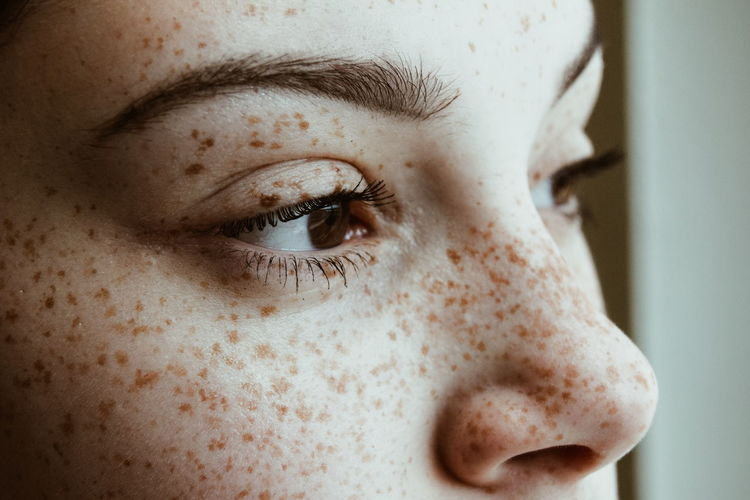 Close-Up Of Thoughtful Woman With Freckles On Face
