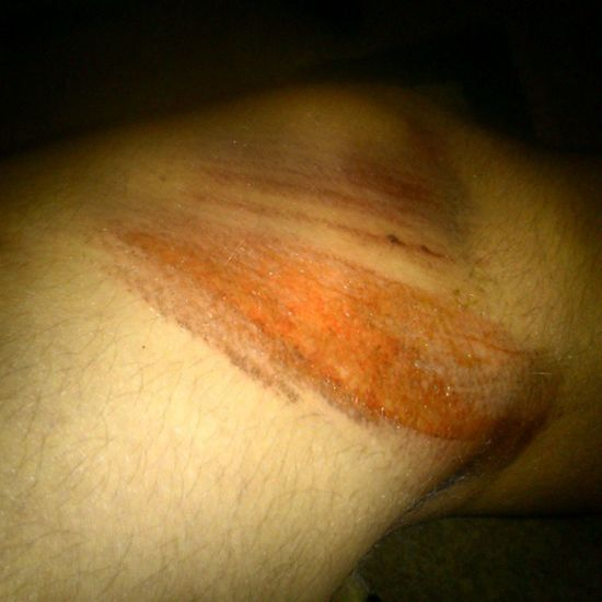 otarcie nad guzia, obicie tylnej czaszki i miednicy, zachęciło mi się rowera. Szpitalnie Ale Juz Po naszczęście. :-D