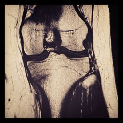 Fractured tibia ? ? ? ?