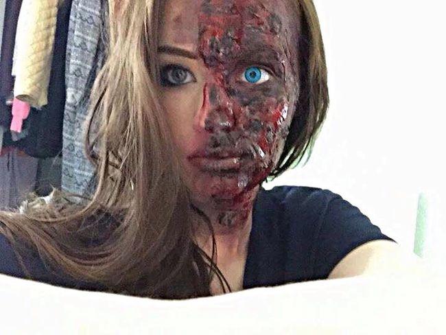 Sister burned face
