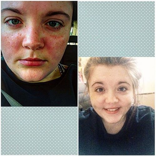 I was tagged by @hoot_hoot_spoonie_ to do the Facesofchronicillness challenge. These are old photos, but still valid. If i am in hot weather or don't feel good, my face looks like this. I get red flared blotches on my chest, chest pain and nausea and vomiting. From just heat. Imagine how it is with everything else. But you'd never guess it because i always try to smile & have a good time. I don't like people to see this side of me, so I don't have very many pictures where I actually look sick. It's just how I am. But this is part of who i am, too. I am chronically ill. And no amount of hiding will ever change that. I tag @brittany.ellen @_chroniccutie and @hannahandthewolf 💜