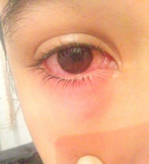 Olho Irritado </3