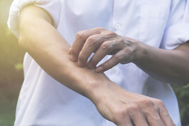 Midsection of woman scratching hand outdoors