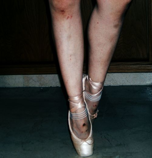 First Eyeem Photo Blood Scars Dance Dance Photography Ballet Dancer Ballerina Ballett
