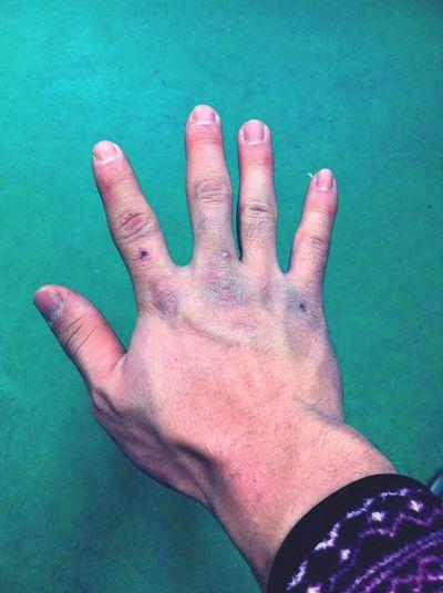못생긴 내 손