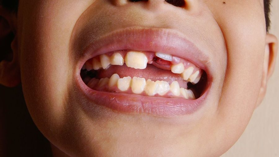 Close-up of boy mouth