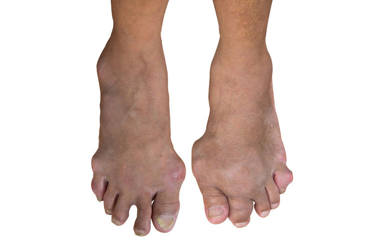 Foot disease or gout isolated or white background. Photo Clipping path. Foot Gout Two Isolated White Background White Background Clipping Path Human Body Part Disease Human Foot Cut Out Close-up Adult Medicine Health Medical Toe Joint Care Injury Body Part Anatomy Uric Acid Bone  Podiatry People