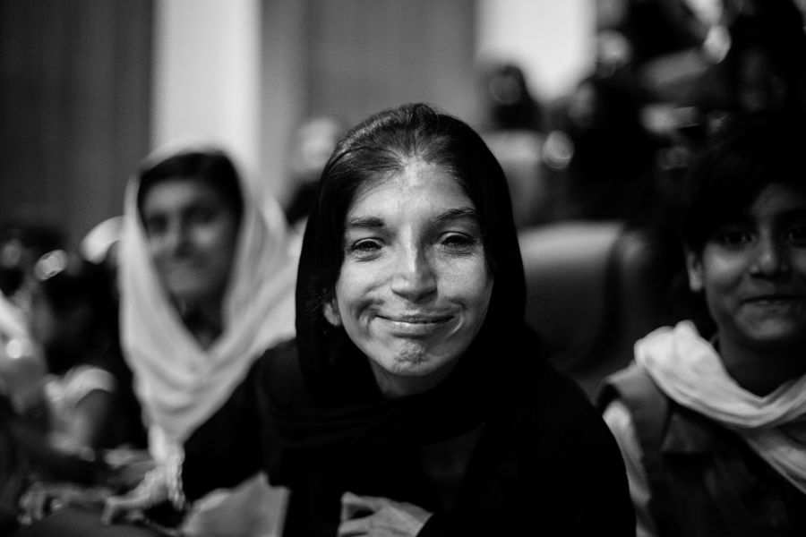 Living Bold Letting disability drown into a smile. - child with hearing impairment. Bnw Makeportraits Faces Just Smile  Specialeducation Specialchildren Faces Of EyeEm Bnw_collection