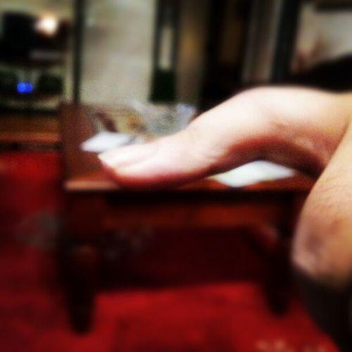 Kanske dags att kolla upp fingret? Peshmerga