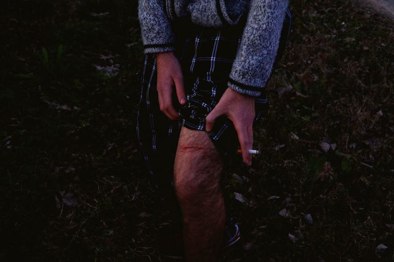 Midsection of man showing injured leg