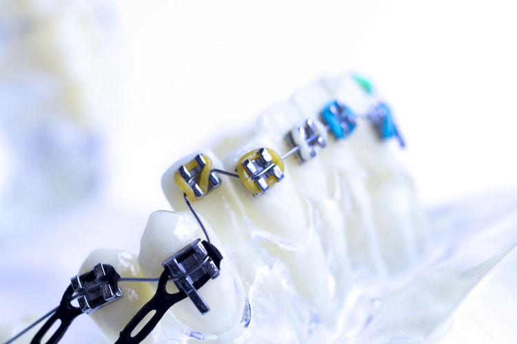 Close-up of dental equipment