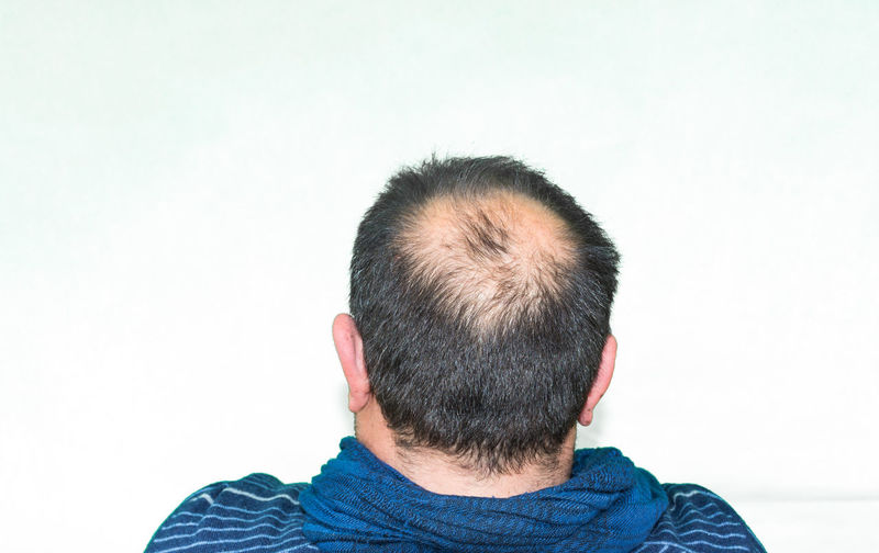 Rear view of man with receding hairline against white background