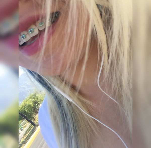 Smile 💕💕💕 Brackets Just Smile  Happiness Blonde Pretty♡ Paradise ❤