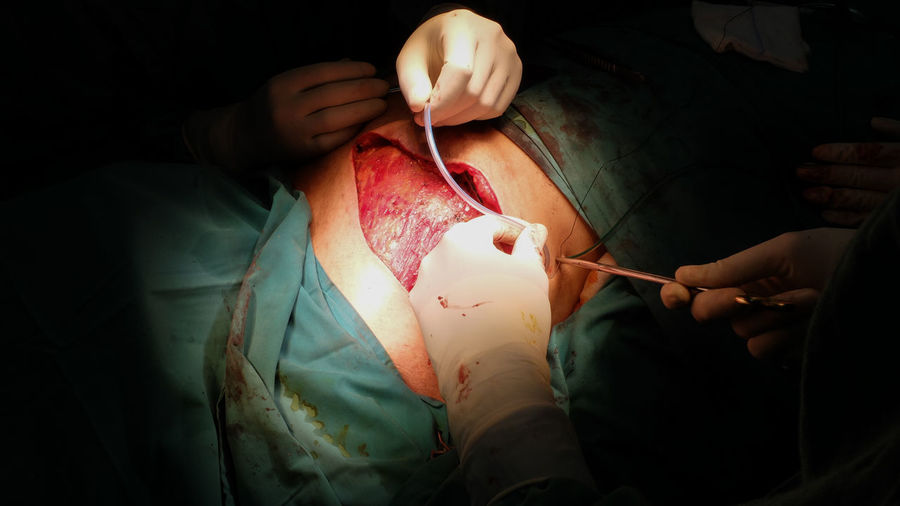 Drain insertion in post mastectomy surgery. Drain Muscle Surgery Surgeon Surgical Equipment Surgical Cap Emergency Room Stitching Operating Room Medical Instrument Emergency Services Occupation Medical Equipment Operating Medical Building Plastic Surgery Surgical Mask Scrubs Surgical Glove Medical Procedure Operating Gown Surgery