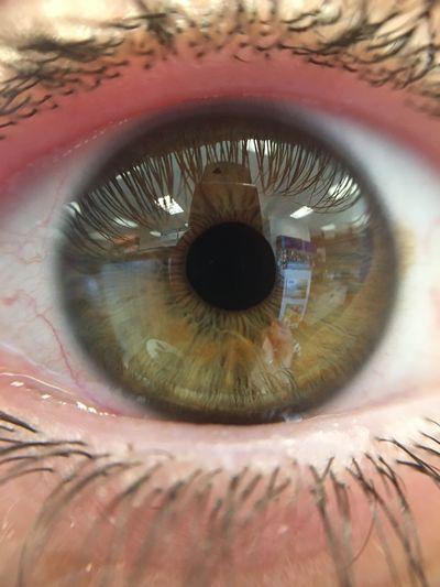 My friends eye