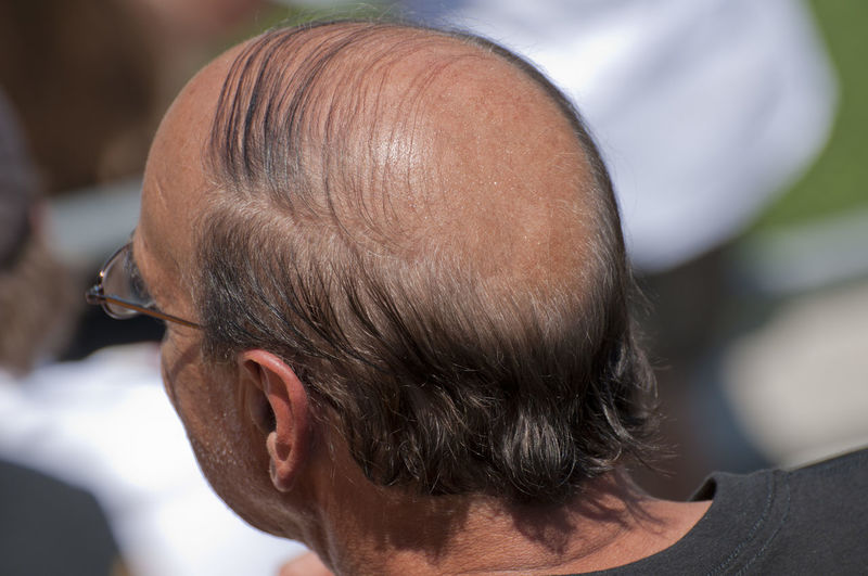 Balding Baldness Hair Loss Hair Things Losing Hair Person Selective Focus Sun Tan