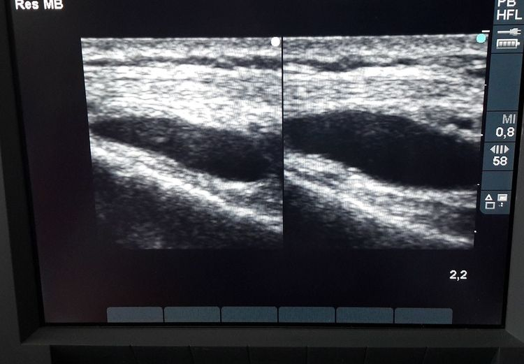 ultrasound Body Part Knee Muscle Injury Anatomical Joint Synovial Pouch Ligament Ecografía Inflammation Capsule Anatomy TENDON Pathology  Pathological Anatomy Ultrasound Scan Ultrasound Machine Bolsa Sinovial
