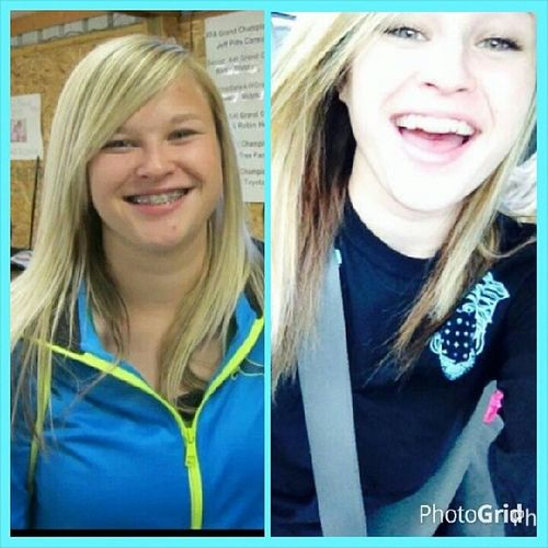 Transformation Tuesday. Fair Goinginto Sophomoreyear Braces thisyear mybirthday nobraces