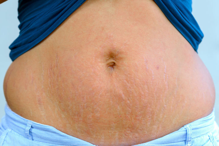 Midsection Of Woman Showing Stretch Marks