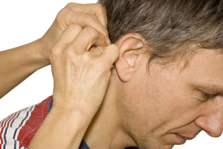 Cropped Image Of Hand Applying Acupuncture Needle On Man Neck