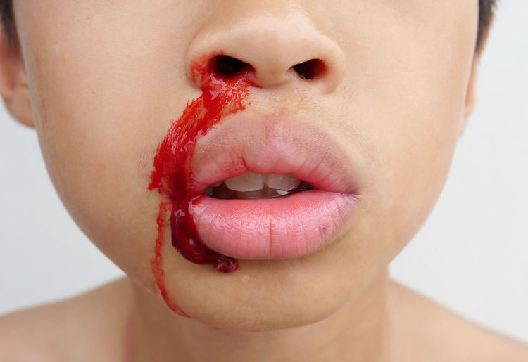 Midsection of boy with bleeding nose against white background