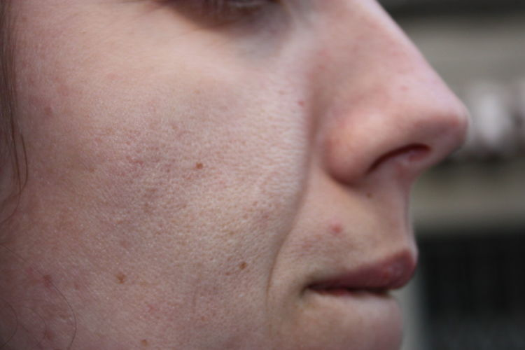 Close-up of young woman skin