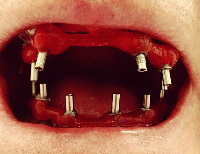 DENTIX Technology Healthcare And Medicine Odontologia Residente Implantology